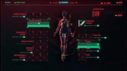 The Ripperdoc Upgrades Cyberware